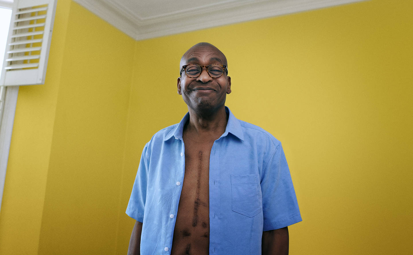Man with scar on chest standing up